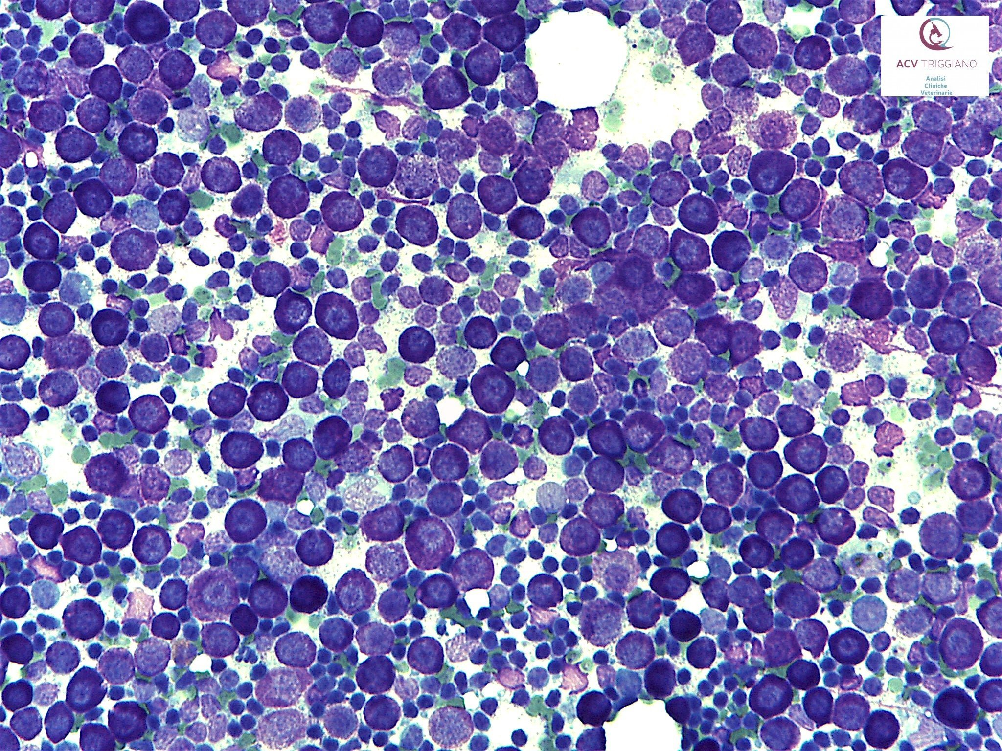 Metastatic mast cell tumour, lymph node, cat.
