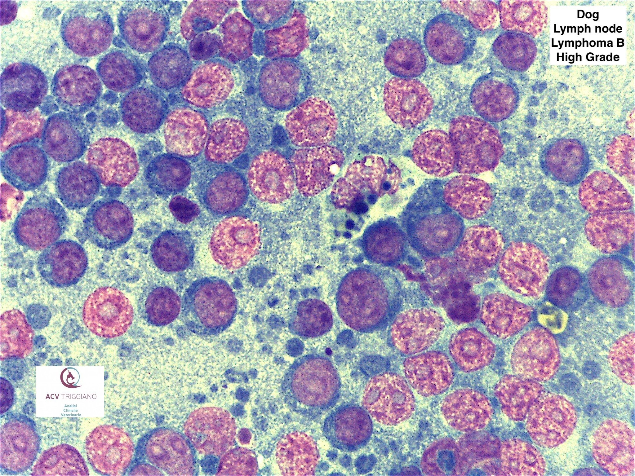 High grade large B cell lymphoma (DLBCL), lymph node, dog.