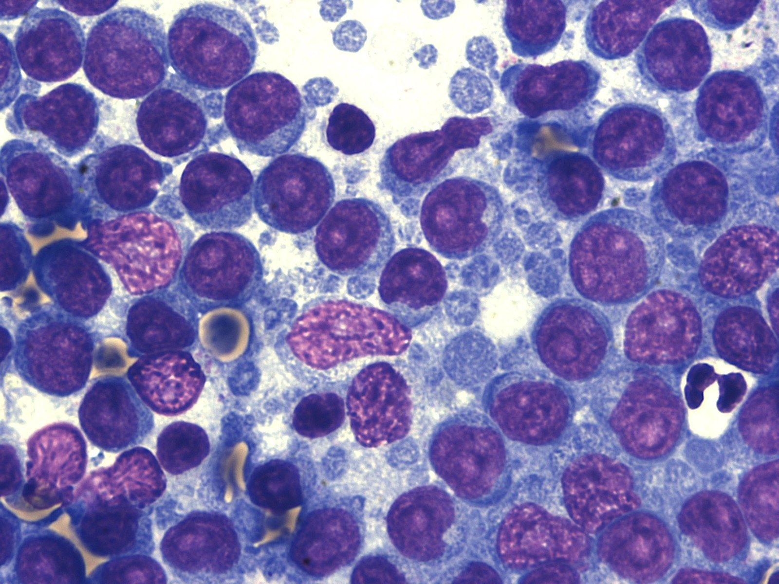 Marginal zone B-cell lymphoma, lymph node, dog.